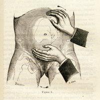De la version céphalique par manoeuvres externes pendant la grossesse