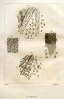 Remarque sur une tumeur provenant de la substance grise céphalo-rachidienne