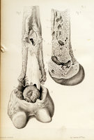 Anatomie pathologique des ostéites