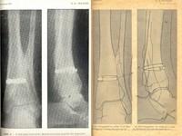 Contribution a l'étude du traitement opératoire des fractures récentes et fermées des os longs par le cerclage (bandes de Parham); Technique opératoire; Résultats éloignés