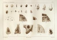 L'os intermaxillaire de l'homme a l'état normal et pathologique