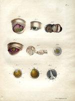 Dissertation sur le fongus médullaire de l'oeil